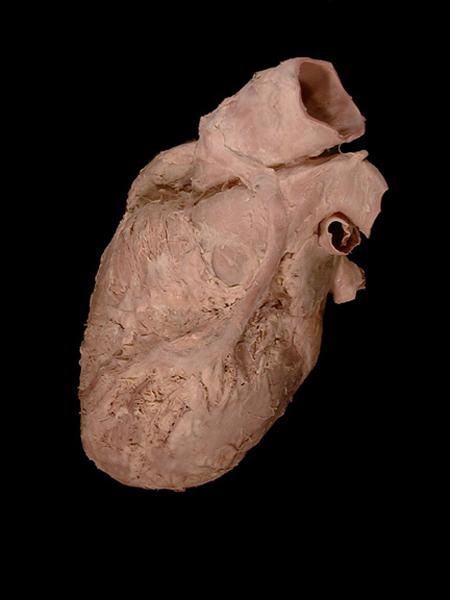 Anatomy Image Database / 32_Image196  Anatomy Image D...