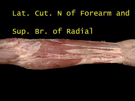 Head And Neck 4 further Abdomen Part 1 Samiotounsi in addition Anatomy Of Radialmedian Ulnar Nerve in addition Neck Dissection 55734244 together with 040 RadialSupBr261. on superficial anatomy
