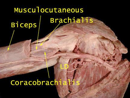 Anatomy...MUN Medical School